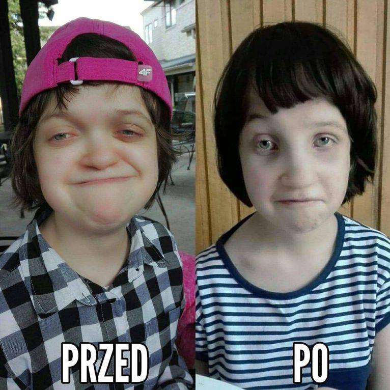 Julka po operacji w USA zyskała nową twarz.