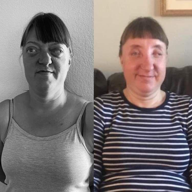 Ewa przed i po operacji