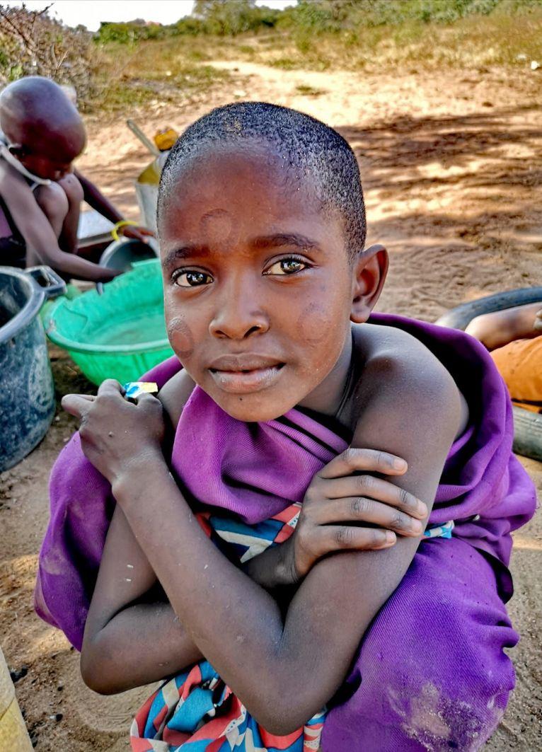 Masajskie dziecko z wypalonymi znakami.